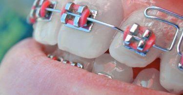 Othodontisten